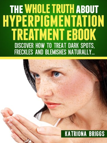 The Whole Truth about Hyperpigmentation Treatment eBook: Discover How to Treat Dark Spots, Freckles and Blemishes Naturally (English Edition)