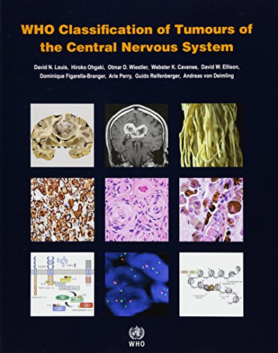 WHO Classification of Tumours of the Central Nervous System (Medicine)