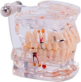 Best dental study model Reviews