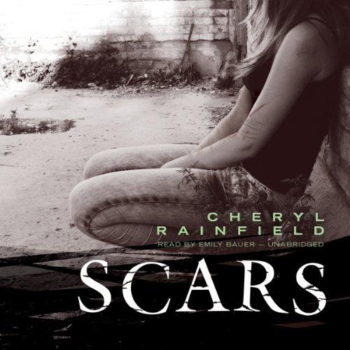 Scars  Audiolibri
