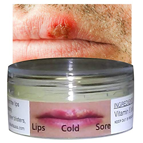 Cold Sore Treatment Silica Jelly Mouth Lips Herpes Blisters Cankers Fungus 10 ml ALKAVITA