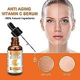 Zoom IMG-2 siero vitamina c 20 per