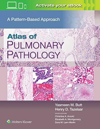Compare Textbook Prices for Atlas of Pulmonary Pathology: A Pattern Based Approach 1 Edition ISBN 9781496397553 by Butt MD, Yasmeen Mahmood,Tazelaar MD, Henry D.