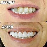 Cómoda funda de silicona perfecta para chapa de dientes para hombres y mujeres