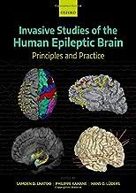 Invasive Studies of the Human Epileptic Brain: Principles and Practice