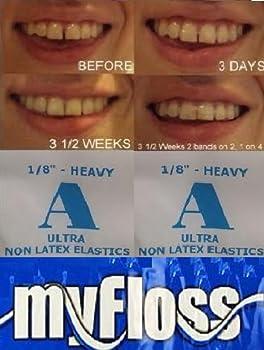 Orthodontic Elastic Gap Teeth Bands &Floss - Size 1/8 Heavy - 100 Bands - for Lower Teeth OR Smaller Upper Teeth