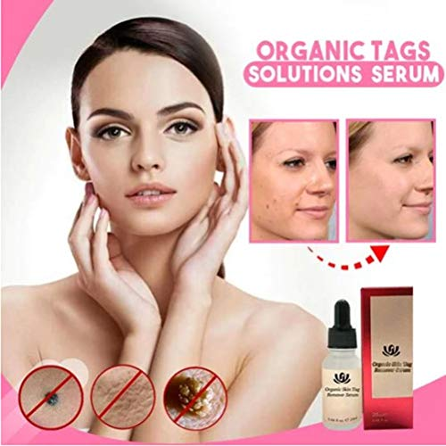 StyleBest 10ml/20ml Mole and Skin Tag Removal Solution Painless Mole Skin Dark Spot Face Warts Removal Liquid