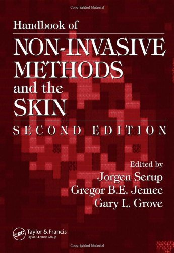 Handbook of Non-Invasive Methods and the Skin