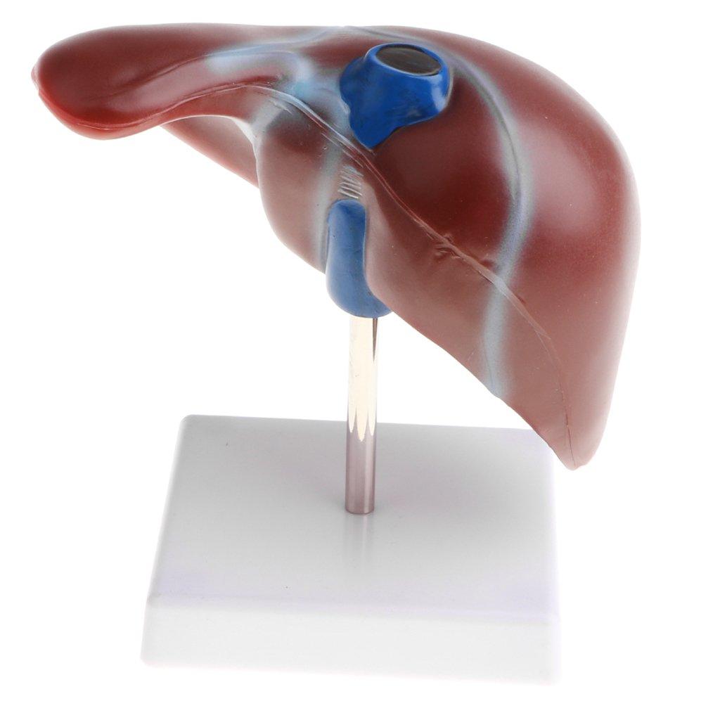 SM SunniMix 2 Piezas 1: 1 Anatómico Hígado Humano Lóbulo Vesícula Biliar Modelo Escuela Ayuda Didáctica: Amazon.es: Juguetes y juegos