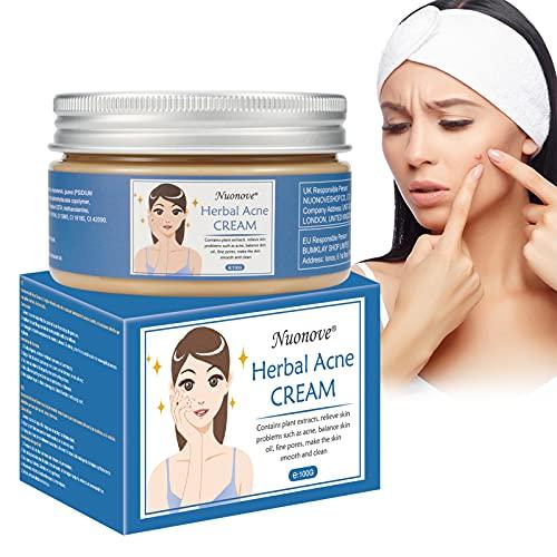 Akne Creme, Acne Treatment , Anti Pickel Creme, Anti Akne Creme, Akne Entferner Creme, Balance Wasser und Öl, Gegen Pickel und unreine Haut für ein klareres Hautbild für Empfindliche Haut 100g