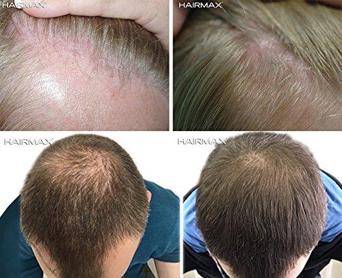 Hairmax Prima 9 LaserComb