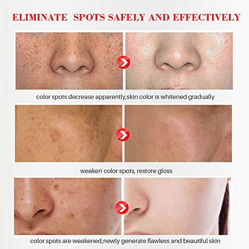 Crema hidratante facial, ColorfulLaVie 30g Crema facial reparadora de la piel Crema esencial Crema antienvejecimiento, antipigmentación y blanqueamiento de la piel, crema hidratante de día y noche para todo tipo de piel
