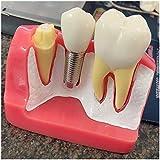 WJH Modelo Dental - Demostración de implantes dentales Modelo de los Dientes - Puente Análisis Implante Corona Dientes Modelo de demostración para la Educación