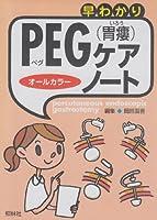 早わかりPEG(胃瘻)ケア・ノート―オールカラー