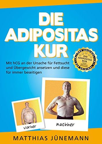 Die Adipositas-Kur mit hCG: An Der Ursache Für Fettsucht Und Übergewicht Ansetzen Und Sie Für Immer Beseitigen von Matthias Jünemann (5. Dezember 2014) Taschenbuch