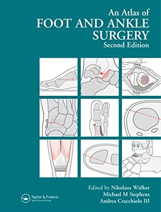 Atlas Foot and Ankle Surgery, Second Edition by Nikolaus W�lker (Editor), Michael Stephens (Editor), Andrea C. Cracchiolo (Editor) (14-Jul-2005) Hardcover