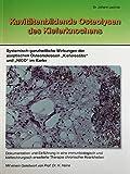 Kavitätenbildende Osteolysen des Kiefernknochens: Systemisch-ganzheitliche Wirkungen der aseptischen Osteonekrosen 'Kieferostitis'