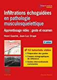 Infiltrations échoguidées en pathologie musculosquelettique:...