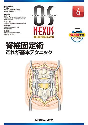 脊椎固定術−これが基本テクニック (OS NEXUS(電子版付き) 6)の詳細を見る