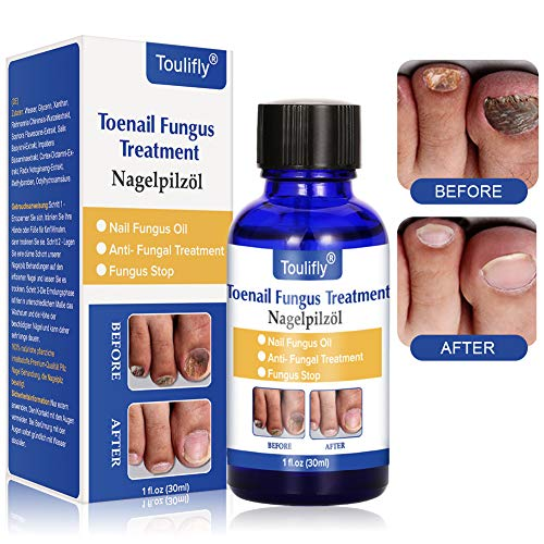 Nail Repair, Nail Repair Solution, Toenail Treatment, Effective Against Nail Infection Restores Discolored & Damaged Nails