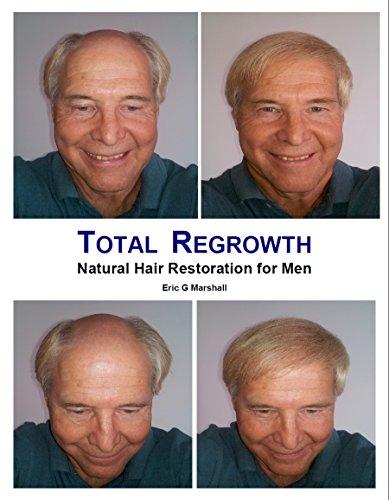Total Regrowth: Natural Hair Restoration for Men (English Edition)