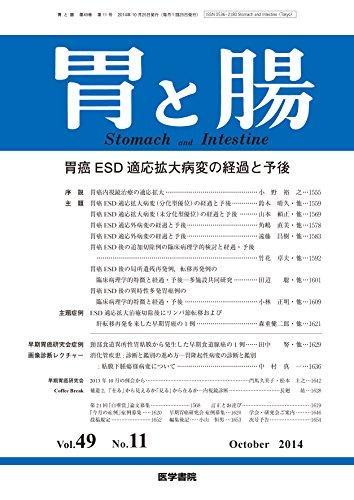 胃と腸 2014年 10月号 主題 胃癌ESD適応拡大病変の経過と予後