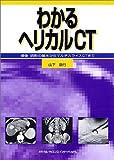 わかるヘリカルCT―撮像・読影の基本からマルチスライスCTまで