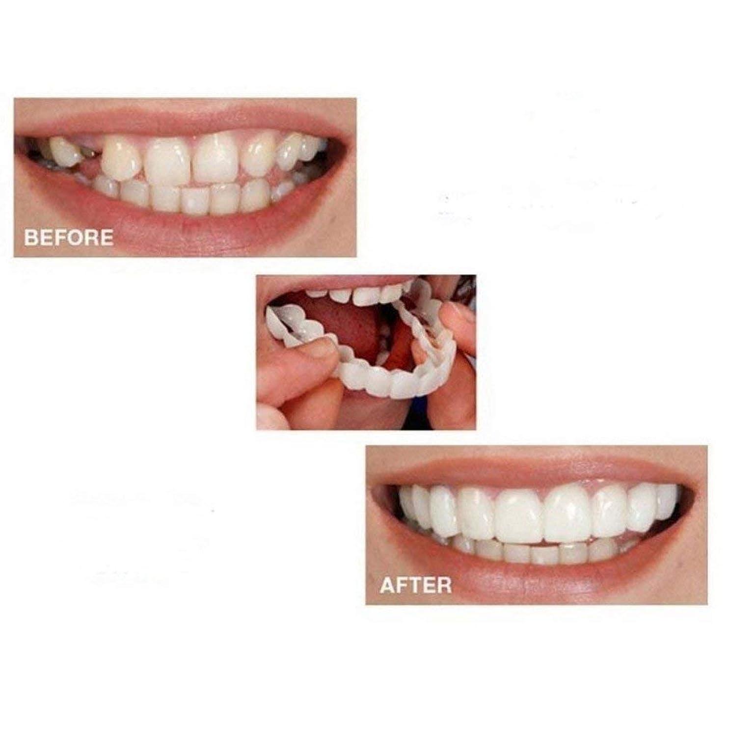 北方究極の。歯のベニアの6ペアは即座パーフェクトサスペンダー美白カバリング不規則な、ステンドグラス、行方不明ひび割れた歯にクリップされたスマイル