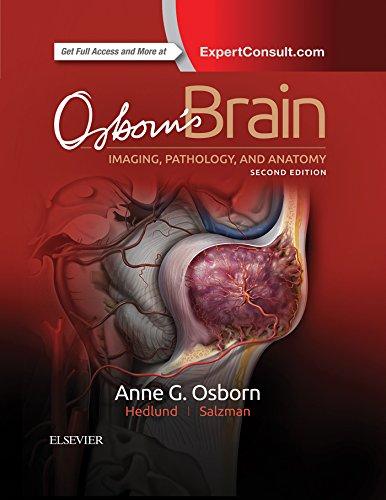 Osborn's Brain E-Book (English Edition)
