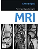 Planning and Positioning in MRI - E-Book (English Edition)