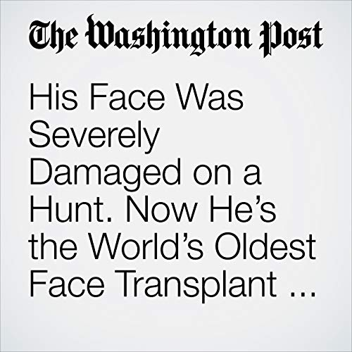 His Face Was Severely Damaged on a Hunt. Now He's the World's Oldest Face Transplant Recipient. copertina
