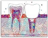 GKZJ Impresiones en Lienzo imágenes de anatomía del Diente Impresiones HD decoración del hogar Cartel Moderno Minimalista para Sala de Estar 70x80cm sin Marco