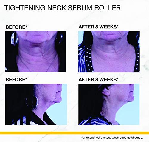 StriVectin Tightening Neck Serum Roller, 1.7 Fl Oz