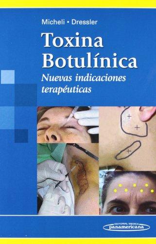 Toxina botulinica: Nuevas indicaciones terapéuticas