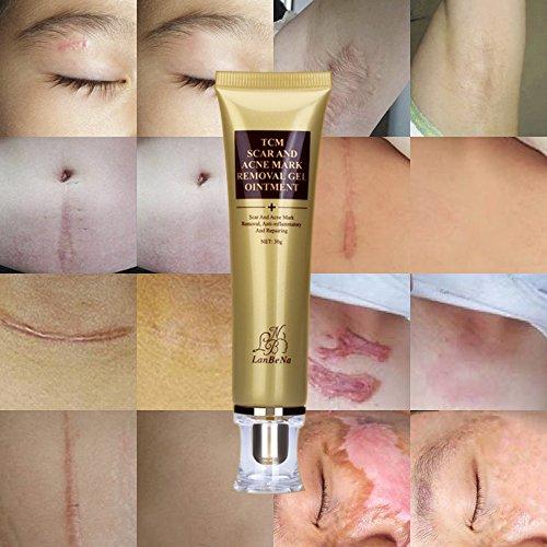 Crema para eliminar cicatrices de acné Estrías Crema reparadora de la piel de la cara Reducir los poros Marcas de cicatrices con desvanecimiento en gel Cuidado de la piel para el acné (30 ml)