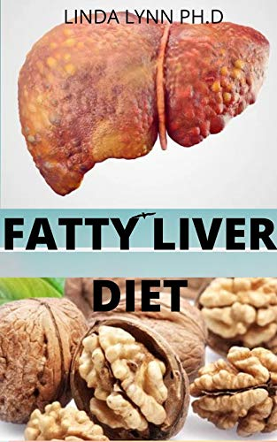 FATTY LIVER DIET:   COMPREHENSIVE GUIDE FOR FATTY LIVER  AND HOW IT CAN BE PREVENTED MANGE AND CURE WITH DIET MEAL PLAN (English Edition)