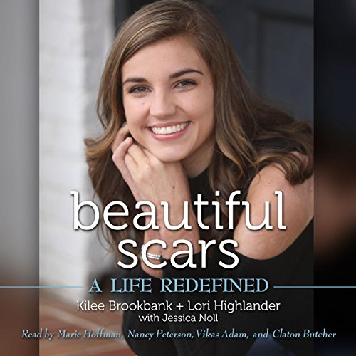 Beautiful Scars audiobook cover art