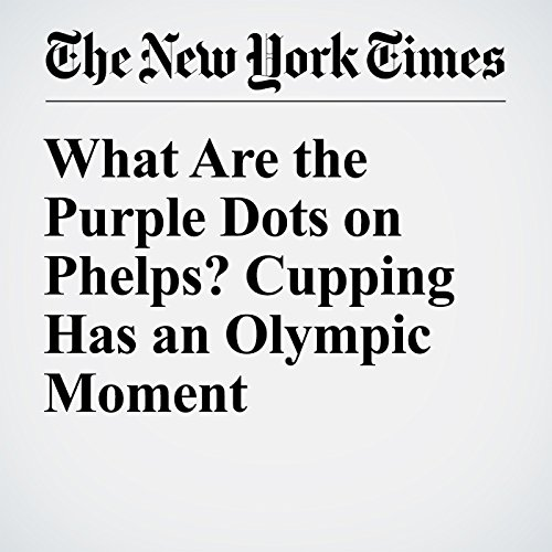 What Are the Purple Dots on Phelps? Cupping Has an Olympic Moment cover art