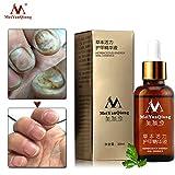 LingStar Herbal Nail Care Essence Toe Nail Fungus Removal Gel Anti Infection Paronychia Onychomycosis