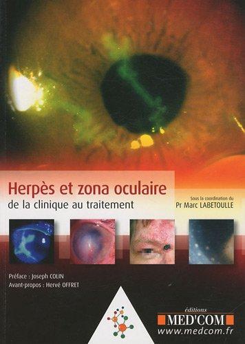 Herpès et zona oculaire : De la clinique au traitement