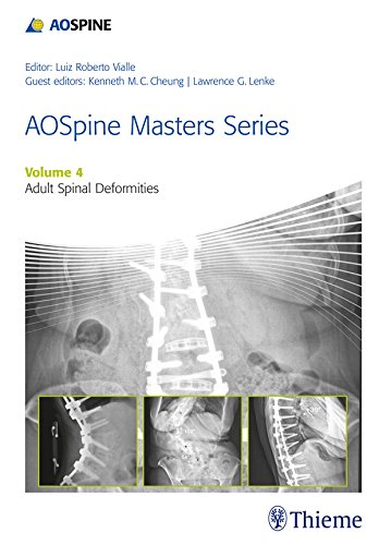 AOSpine Masters Series, Volume 4: Adult Spinal Deformities (English Edition)