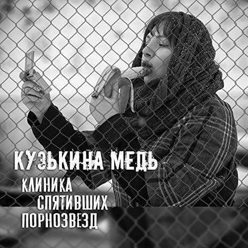 Кузькина Медь