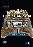 Tomografía computarizada dirigida a técnicos superiores en imagen para el diagnóstico (...