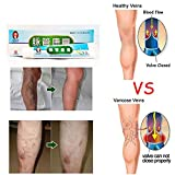 Ofanyia Varicose Veins Treatment Cream Relief Phlebitis Angiitis Inflammation Blood Vessel Health Skin Care Veins Cream