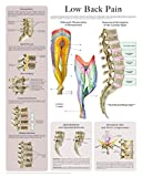 Low Back Pain e-chart: Quick reference guide