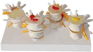 The Diseased Model of Vertebrae,Human Lumbar Vertebral Spine Anatomy Model,Lumbar Lesion Model Anatomical Disc Herniation ...