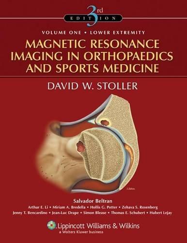 Magnetic Resonance Imaging in Orthopaedics and Sports Medicine (2 Volume Set)