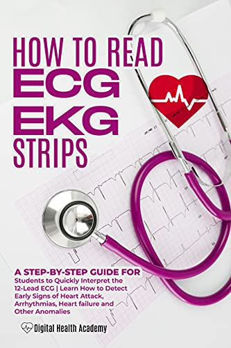 How to Read EKG/ECG Strips: A Step-By-Step Guide for Students to Quickly Interpret the 12-Lead ECG|Learn How to Detect Early Signs of Heart Attack, Arrhythmias, ... and Other Anomalies (English Edition)