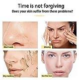 Masajeador Facial,Dispositivo de Masaje,Facial Aparato Radiofrecuencia, LED, Antiarrugas, Anti-envejecimiento, Rejuvenecimiento, Limpieza Profunda
