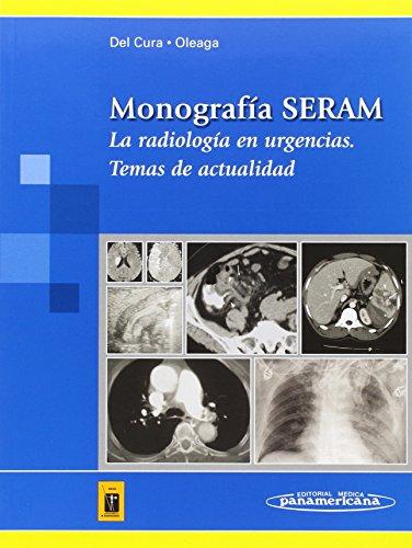 Monografía SERAM: Radiología en urgencias. Temas de actualidad